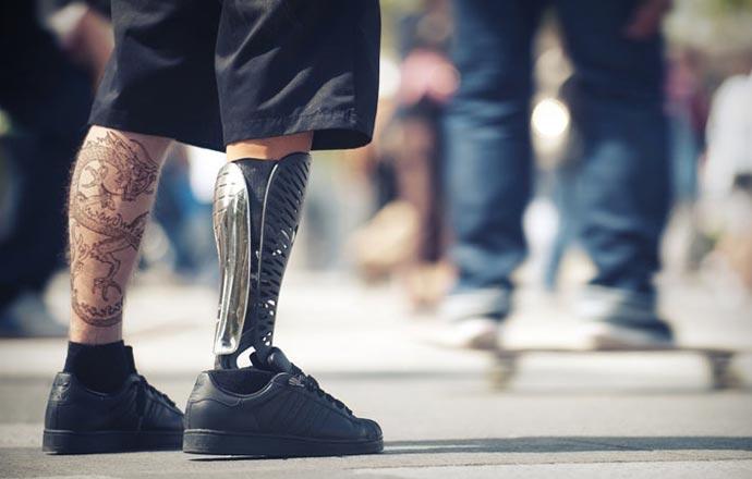 custom prosthetic legs